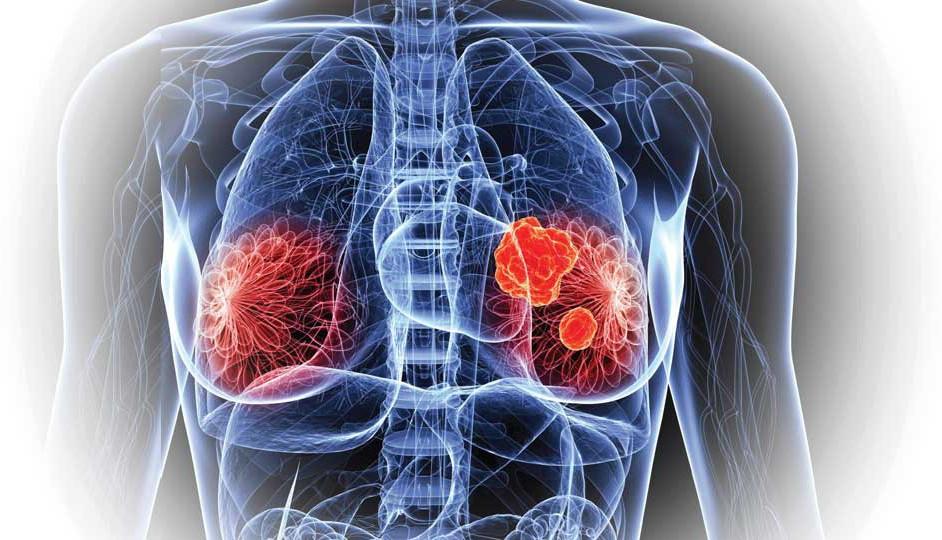 Comparación de tejidos sanos y tumoraciones mastológicas.