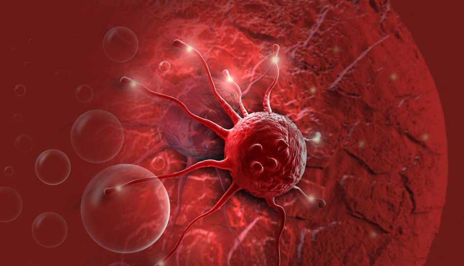 Imagen dramatizada del desarrollo del cáncer.
