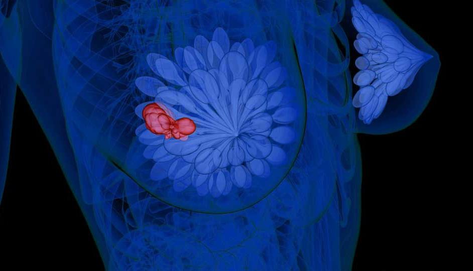 Ilustración de la detección de una neoplasia mamaria.