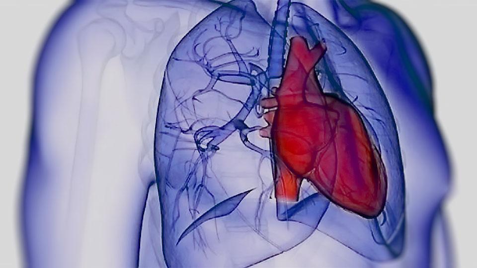 Unidad de Hipertensión Arterial Pulmonar.