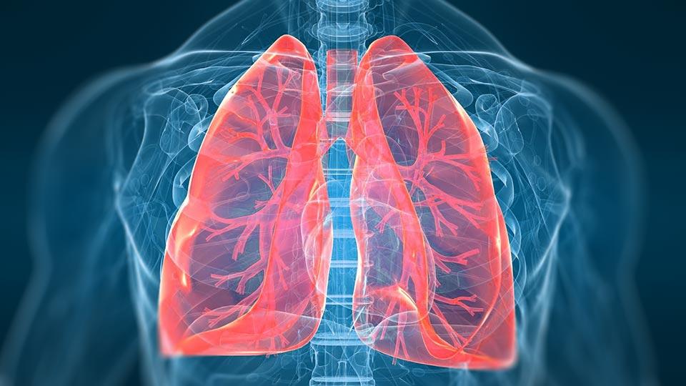 Hipertensión Arterial Pulmonar.